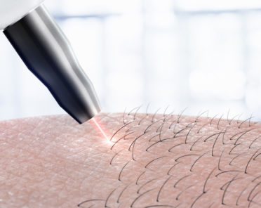 Laser Hair Removal Series: How to Prepare?